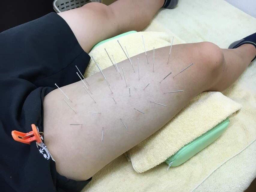 骨化性筋炎